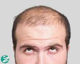 الگوی طاسی مردانه: علل، شناسایی، پیشگیری و درمان