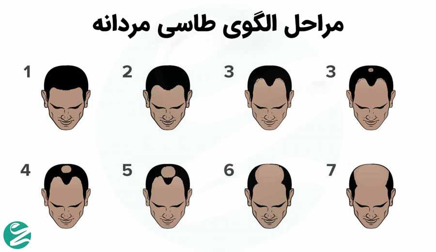 مراحل طاسی در مردان