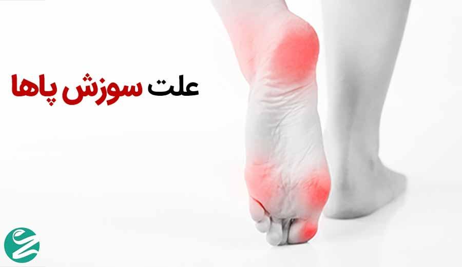دلایل سوزش پاها