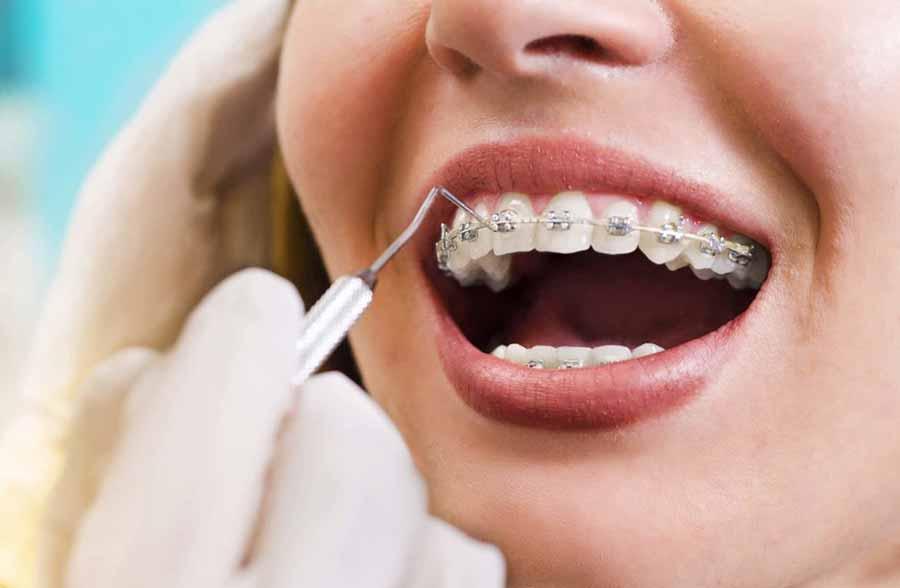 متخصص ارتودنسی کیست و چگونه برای ما یک لبخند زیبا خلق میکند؟