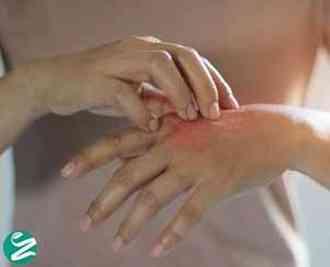 عفونت پوست از علائم، علت، تشخیص تا درمان
