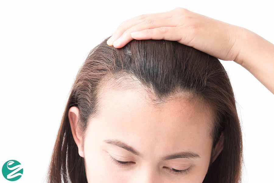 نازک شدن مو؛ از علت تا درمان موهای نازک و ضعیف