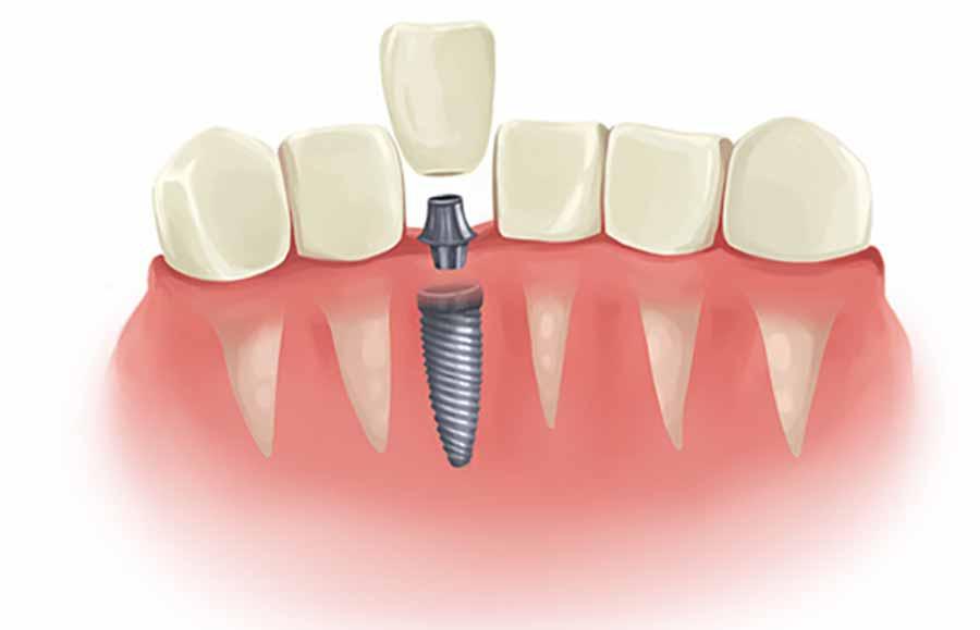 8 عامل تاثیرگذار بر هزینه و قیمت ایمپلنت دندان
