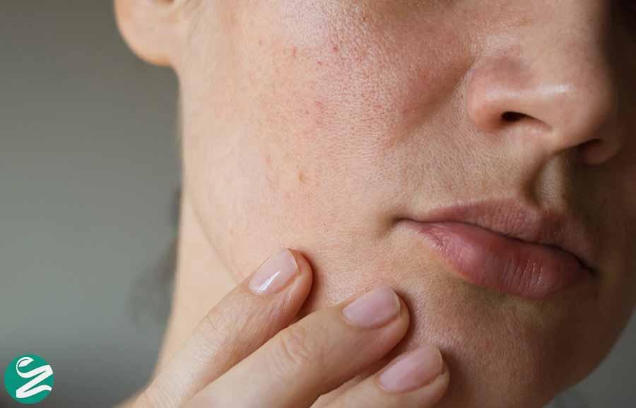 علت خشکی پوست