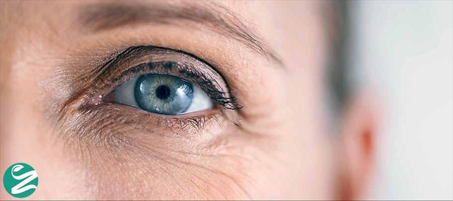 درمان لرزش پلک چشم