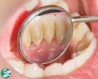 از بین بردن جرم دندان و رفع پلاک دندان با روش خانگی