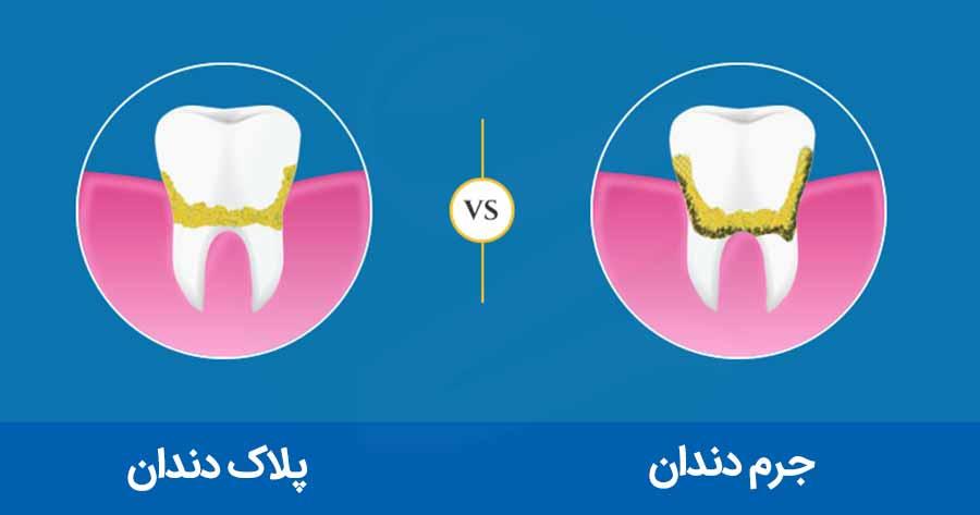 تفاوت پلاک و جرم دندان