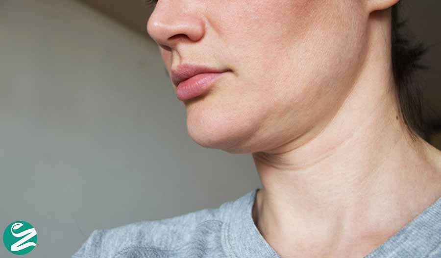 جلوگیری از افتادگی پوست صورت