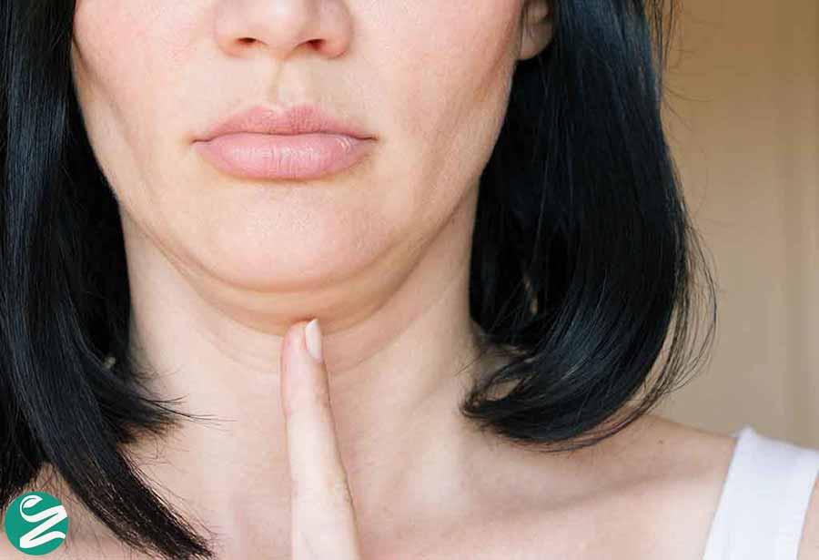 افتادگی و شل شدن پوست