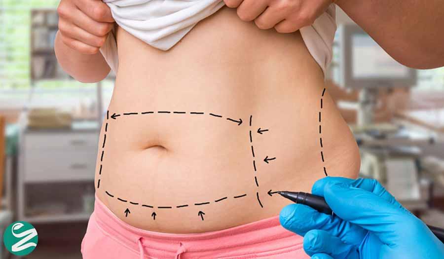 درمان افتادگی پوست با جراحی زیبایی