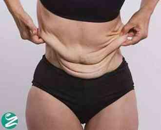 جلوگیری و درمان افتادگی پوست شکم بعد از لاغری