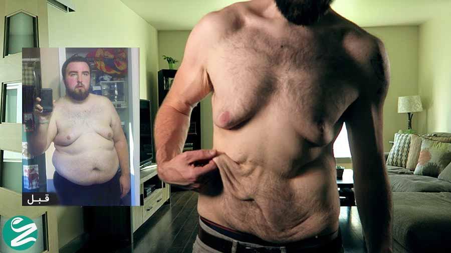 افتادگی پوست بعد از لاغر شدن