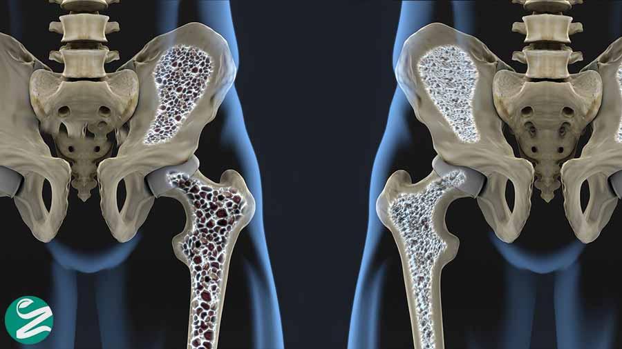 مصرف پروتئین زیاد و پوکی استخوان