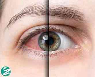 خشکی چشم چیست؟ دلایل و درمان