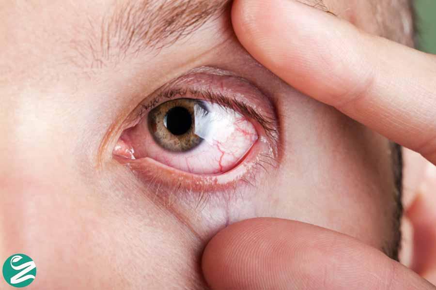 عوارض خشکی چشم