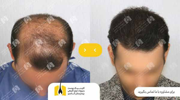 قبل و بعد کاشت مو