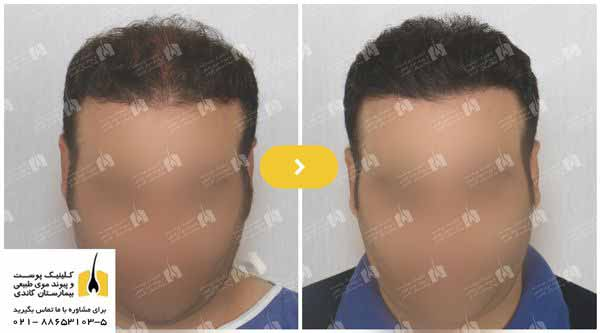 نمونه قبل و بعد کاشت مو در کلینیک پیوند موی طبیعی بیمارستان گاندی