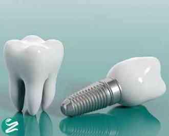 چرا کاشت ایمپلنت دندان برای شما بهتر است؟
