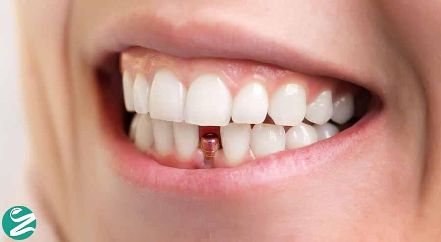 ایملپنت دندان