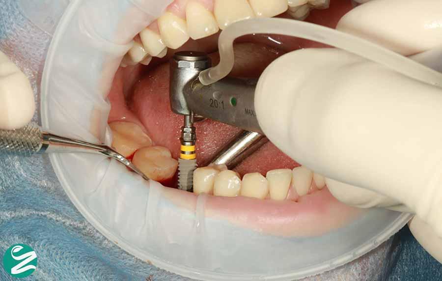 جایگزین کردن دندان های از دست رفته