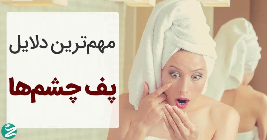 علت پف کردن چشم ها