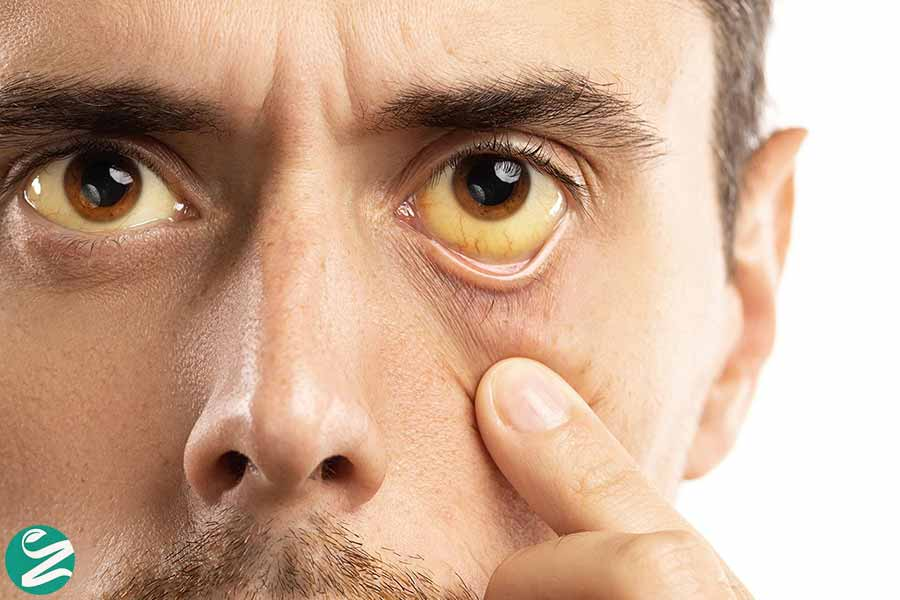 زردی چشم و کبد