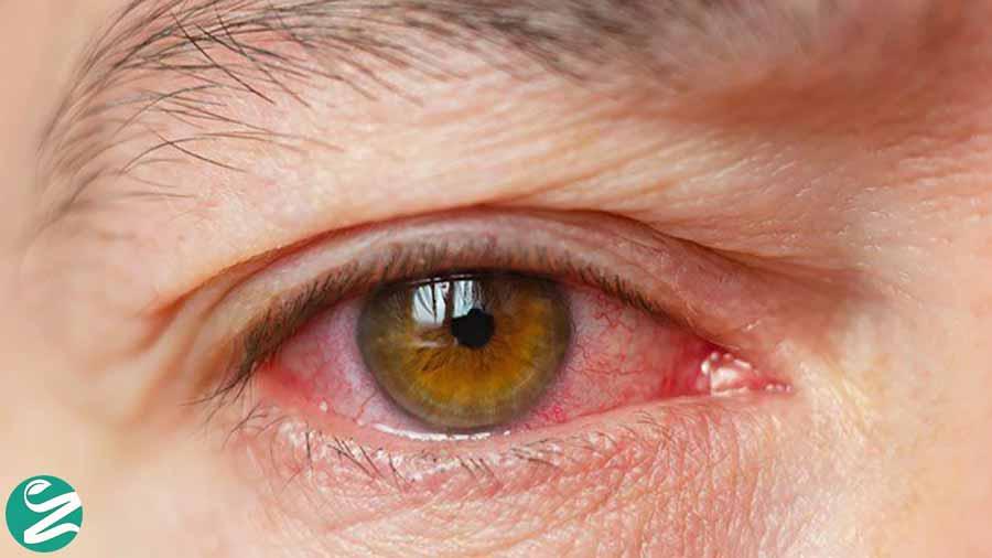 خشکی چشم و کبد