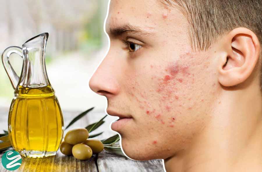 درمان جوش با روغن زیتون