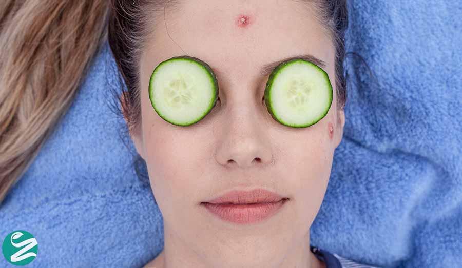 درمان جوش صورت با خیار