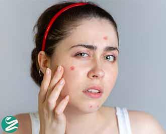 علت جوش صورت در نوجوانی و بزرگسالی چیست؟