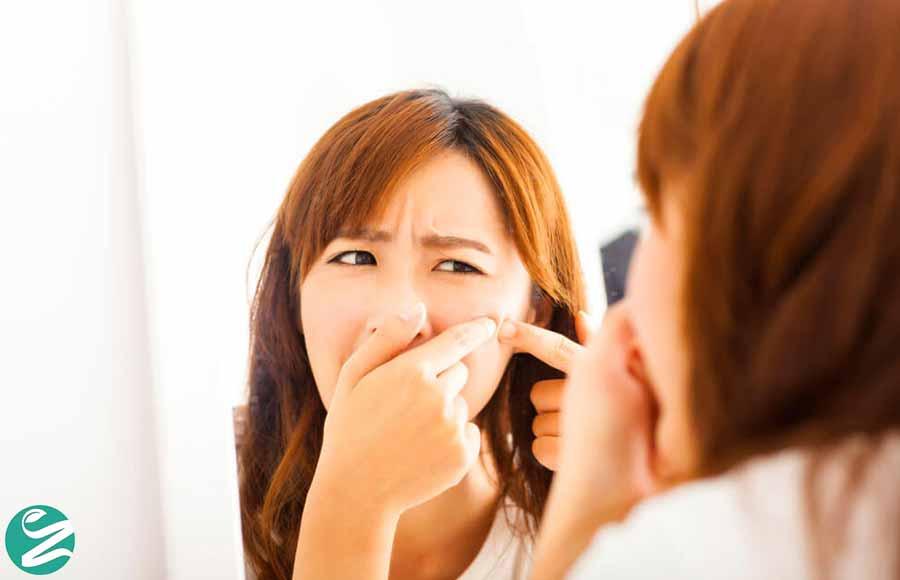 علت جوش صورت در زنان