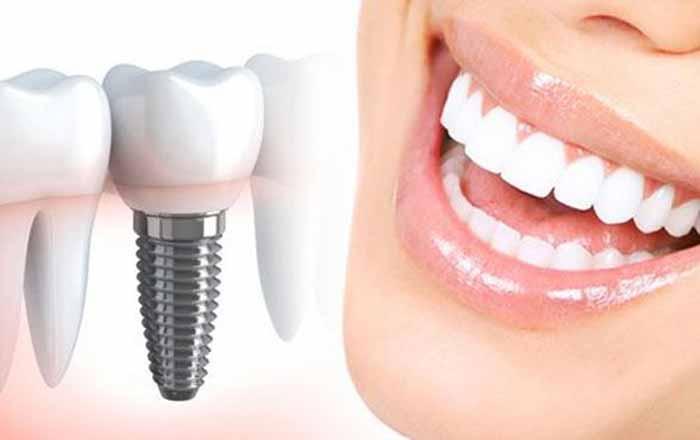مزایای استفاده از ایمپلنت دندان