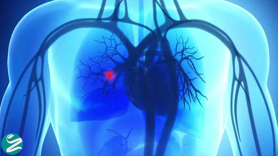 آمبولی ریه (وارد شدن لخته خون به ریه) چیست؟
