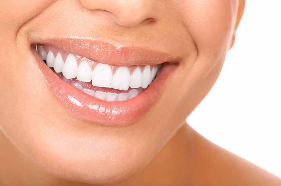 برای درخشانی دندان ها؛ کامپوزیت بهتر است یا لمینت؟