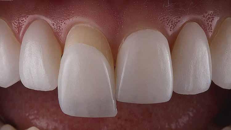 درخشانی و کاربرد لمینت دندان