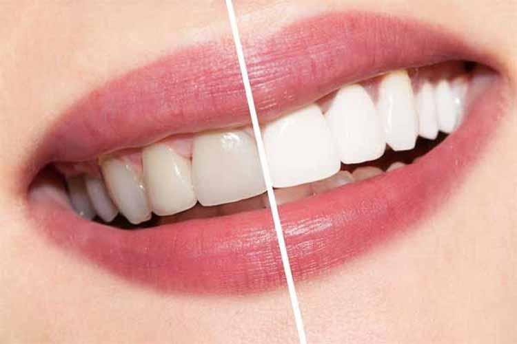 مقایسه ایمپلنت و کامپوزیت دندان