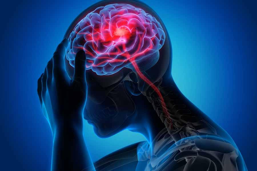 متخصص مغز و اعصاب