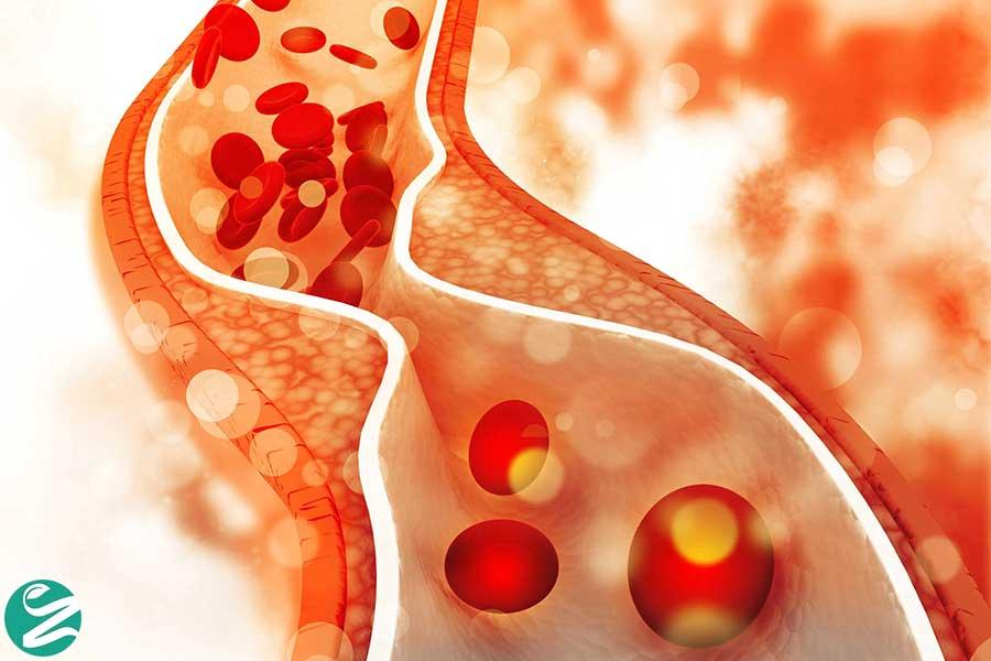 کلسترول خون نرمال