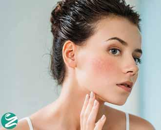 پوست حساس چیست؟ از تشخیص تا مراقبت این نوع پوست