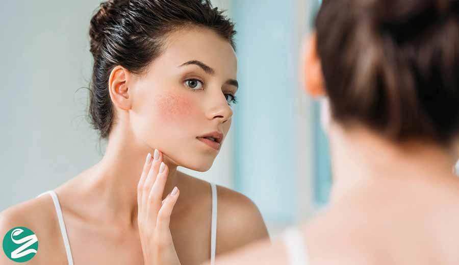پوست حساس چیست؟ از علت تا تشخیص پوست های حساس