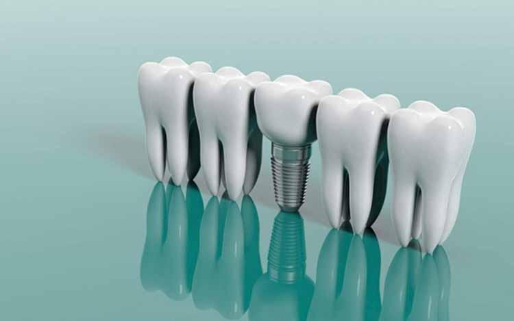 تفاوت برندهای ایمپلنت دندان در ایران