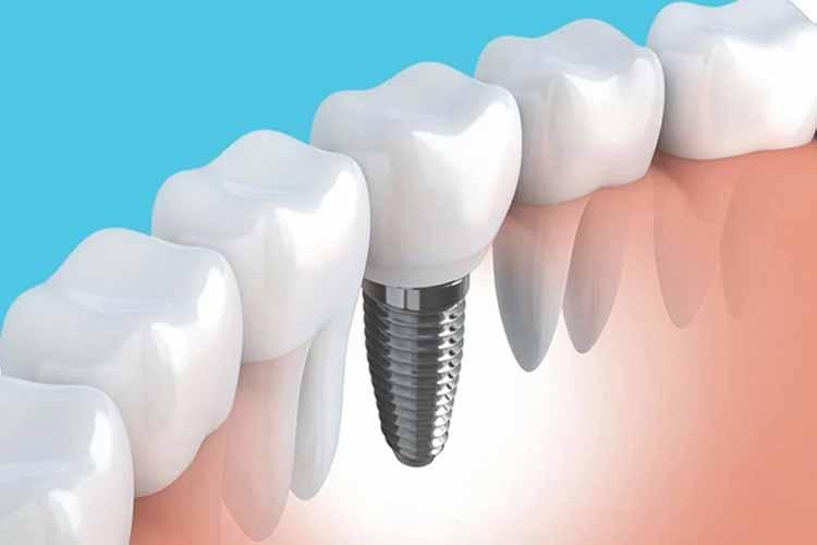 انواع برندهای ایمپلنت دندان
