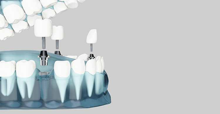 انواع برندهای ایمپلنت دندان در ایران