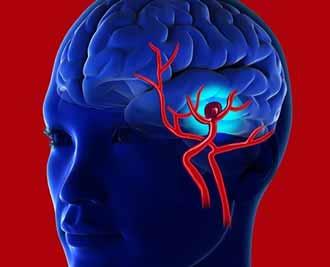 آنوریسم مغزی چه بیماری است؟