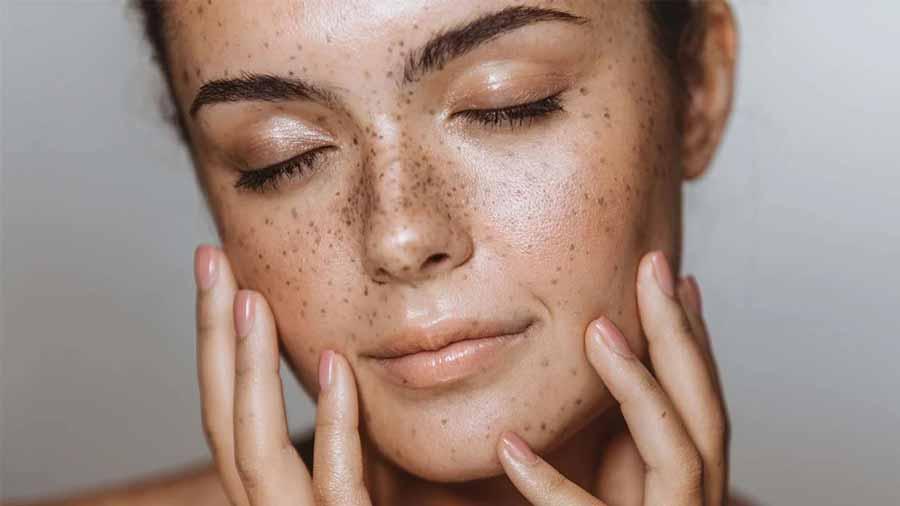 علت پوست مختلط