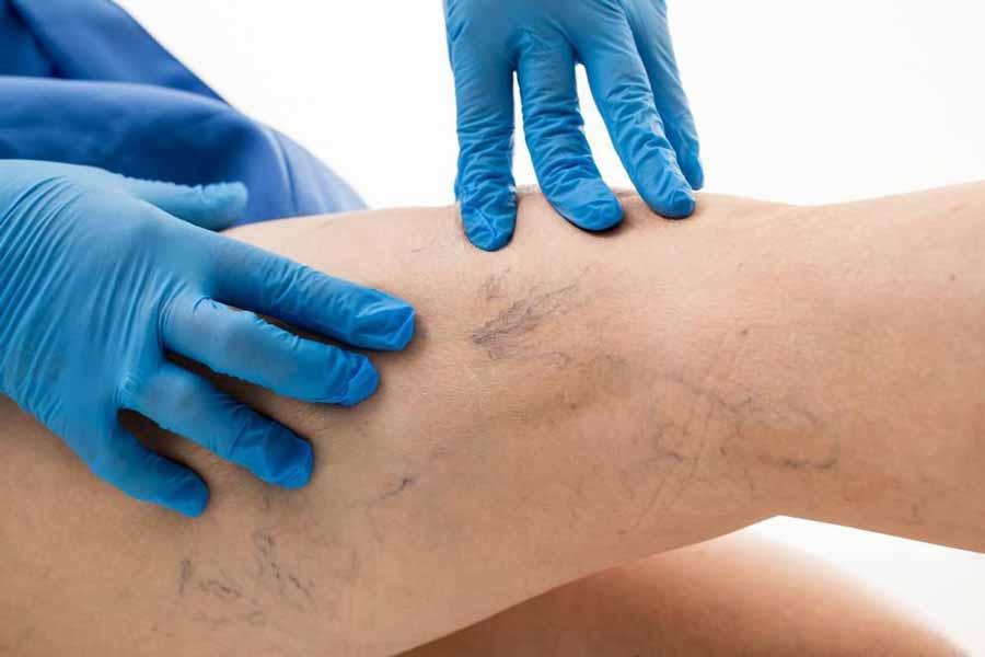 عوارضی که در صورت عدم درمان واریس پا شما را تهدید میکنند!