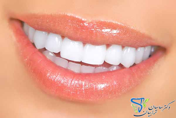 درمان دندان آسیب دیده با ایمپلنت بهتر است یا لمینت