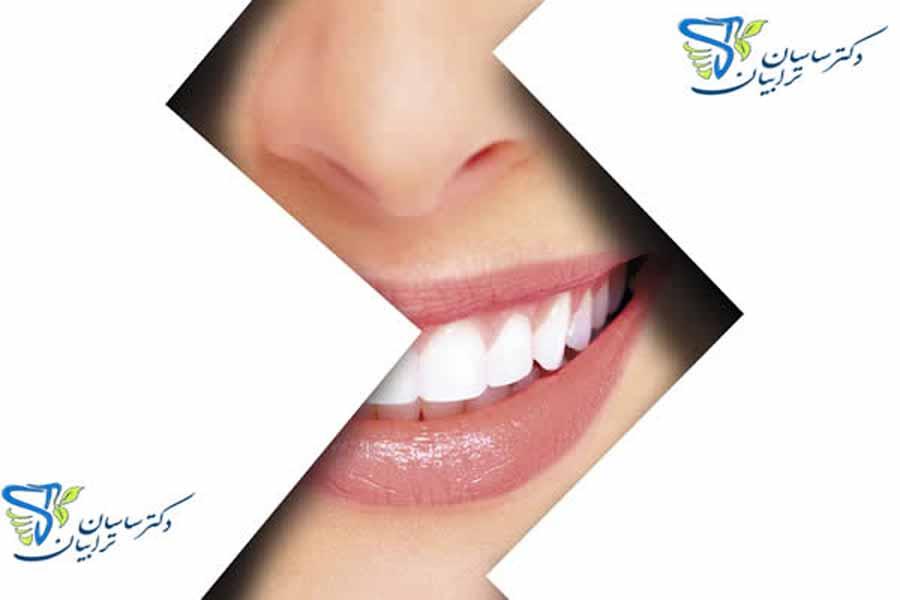 بهترین دکتر لمینت و روکش دندان در تهران