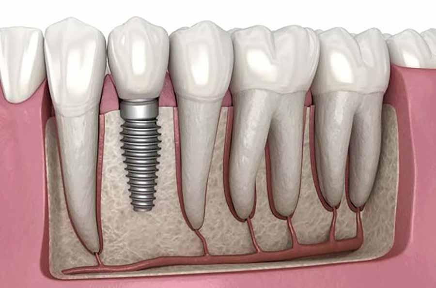 بهترین کلینیک ایمپلنت دندان کجاست؟