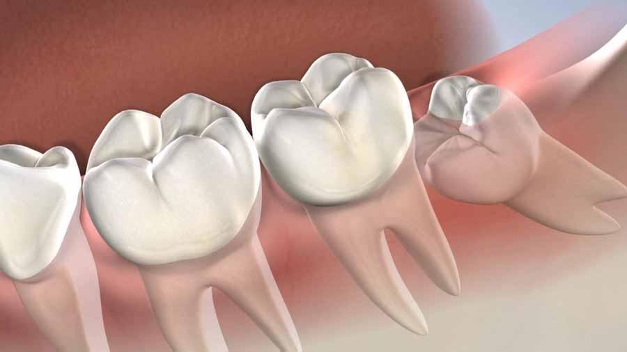 دندان عقل در چه سنی رشد میکند؟ (جراحی دندان عقل و انواع آن)